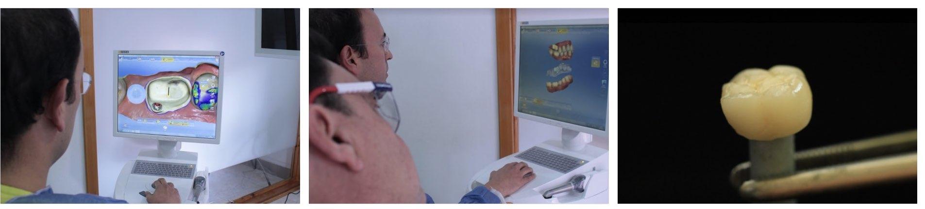 Dental Cadcam Proces Salud Oral Chiapas México